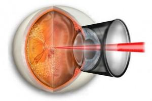 Лазерная терапия сетчатки